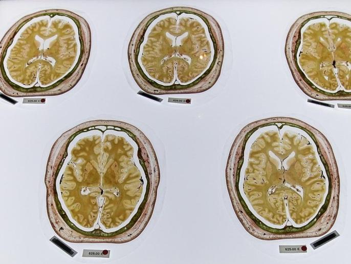 دودة شريطية عاشت في دماغ مريض أربع سنوات