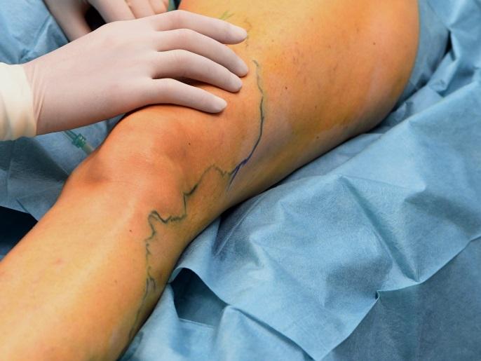 دوالي الساقين أنهار زرقاء داكنة على خريطة الجلد