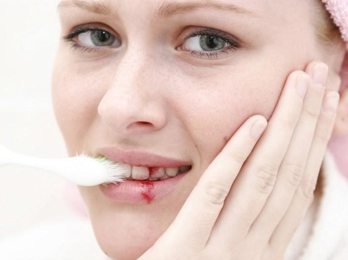 5 علاجات من مطبخك تخفف آلام الأسنان