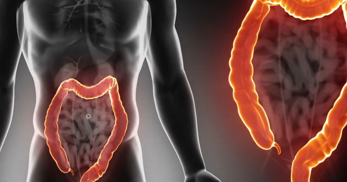 البراز الأسود ينذر بسرطان الأمعاء
