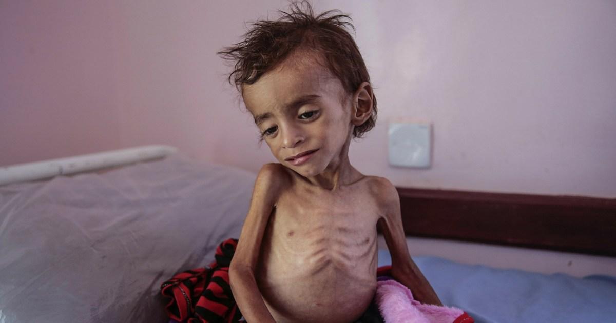 الأمم المتحدة: 12 مليون يمني بحاجة ماسة للمساعدة